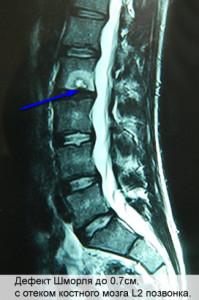 лечение спины, боли в спине лечение, боль в спине лечение, боль в спине поясница лечение, боль в спине в пояснице лечение, лечение при болях в спине и пояснице, лечение боли в спине в области поясницы, боль в спине причины и лечение, боль в спине причины лечение, боли в спине и пояснице причины лечение, если болит спина лечение, боль в спине поясница чем лечить, лечение позвоночника боли в спине, боли в спине ниже поясницы лечение, болит спина в пояснице лечение, болит спина в области поясницы лечение, боли в спине лечение уколы, мышечные боли в спине лечение, боль в спине лечение уколы, сильно болит спина чем лечить, сильно болит спина как лечить, лечение при болях в спине и суставах, боли в спине при беременности лечение, лечение при болях в спине уколы, острая боль в спине лечение, боли в спине лечение мази, боли в спине какой врач лечит, боль в спине лечение лекарства, лечение мышечных спазмов в спине, лечение мышечных спазмов спины, болит спина внизу как лечить, боль в спине справа ниже поясницы лечение, боль в спине выше поясницы лечение, почему болит спина как лечить, мышечные боли в спине чем лечить, боль в спине крестец лечение, болит спина после родов лечение, болит низ спины чем лечить, болит низ спины как лечить, невролог лечит спину