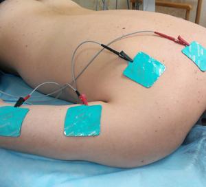 После родов тянет между лопатками и болит спина клиническая картина