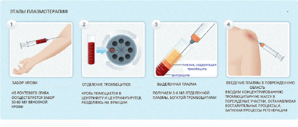 PRP терапия (плазмотерапия)